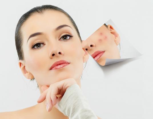 Cách làm mờ vết thâm trên mặt với Dermatix ultra