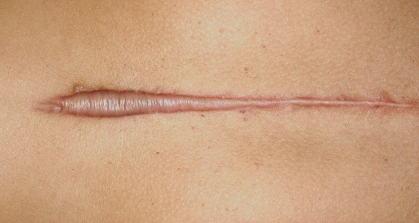 Scars-and-Keloids-Can-Be-Removed-with-Natural-Methods-1