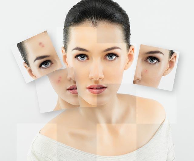 Gel cải thiện sẹo lồi Dermatix Ultra