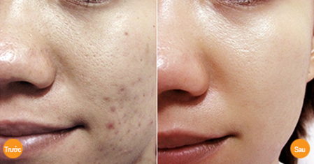 Trước và sau khi trị sẹo