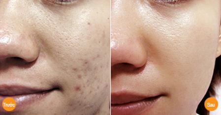 Trước và sau khi điều trị sẹo lồi