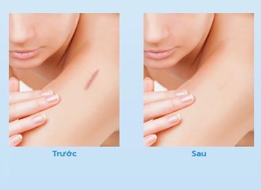 Trước và sau khi sử dụng Dermatix