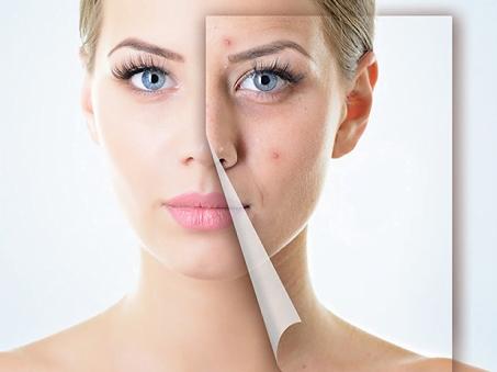 Mặt trước và sau khi trị sẹo bằng Dermatix ultra