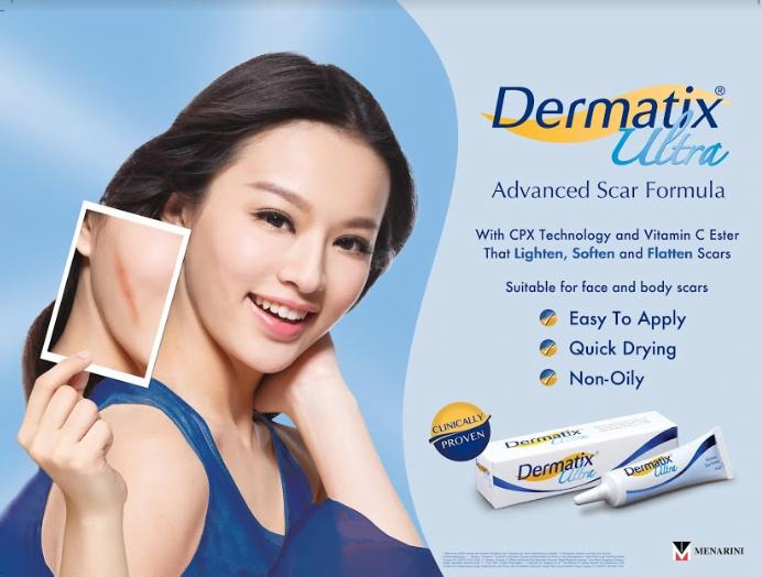 Làm mờ sẹo lõm với Dermatix Ultra