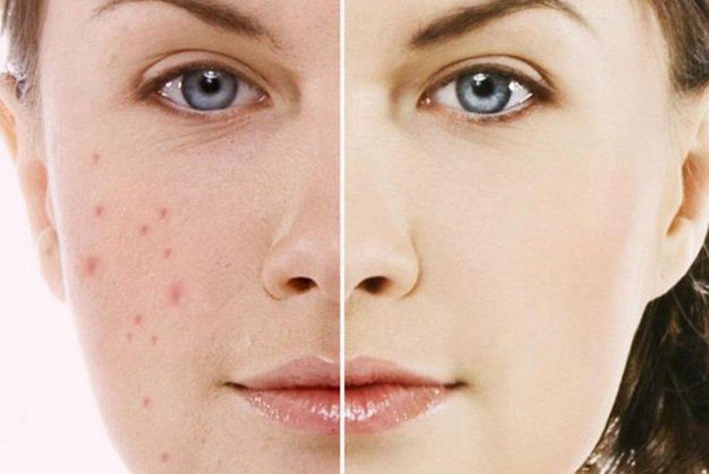 Trước và sau khi trị sẹo bằng Dermatix Ultra