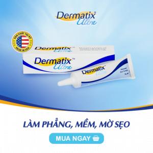 sẹo mổ đẻ dermatix ultra